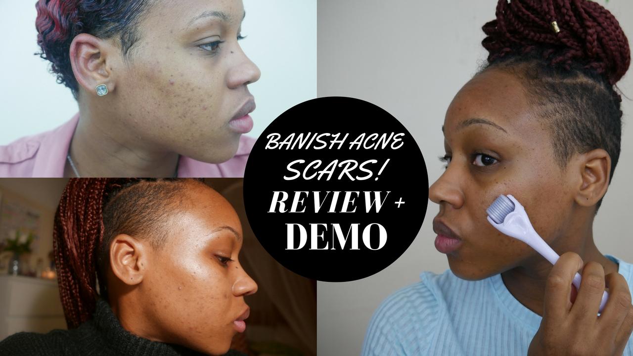 How to banish Acne scars! Banish starter kit Review + Demo